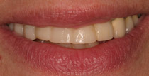 Closeup of traditional denture front