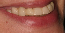 Closeup of left side of smile with removable denture
