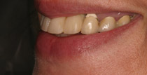 Closeup of right side of smile with removable denture