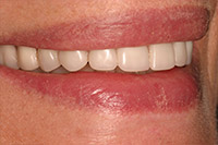 Side of smile with implant denture in place