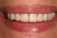 Front of smile with implant denture in place