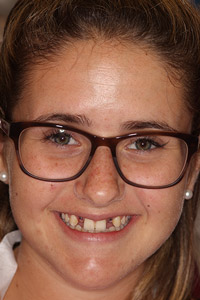 Young girl with missing teeth before implants