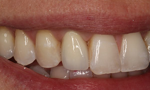 Missing tooth closeup after implants