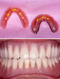 Inside of implant denture and full implant denture in place