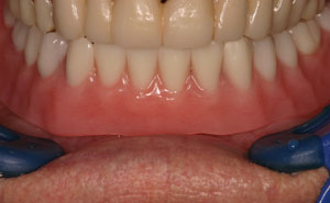 Dental restoration attached to two dental implants