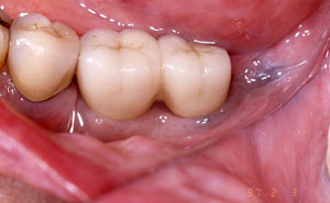 Closeup of replacement teeth attached to implants