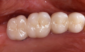 Replacement teeth attached to implants