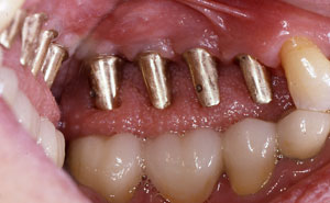 Four dental implants in place