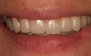 Flawlessly repaired teeth after makeover