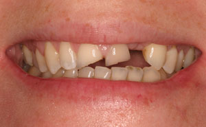 Broken damaged teeth before makeover