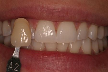 Order Doxycycline Teeth
