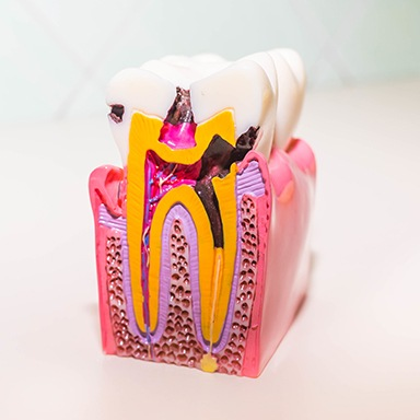 Model tooth displaying the effects of a root canal