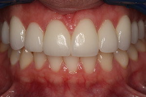 After closeup teeth and gums smile makeover patient