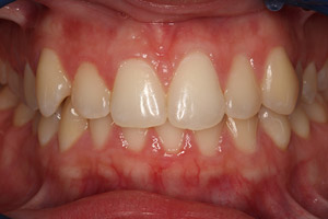 Before closeup teeth and gums smile makeover patient