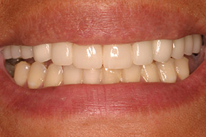 Closeup of brilliant smile after treatment