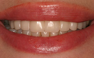 Closeup of beauitufl teeth after smile makeover