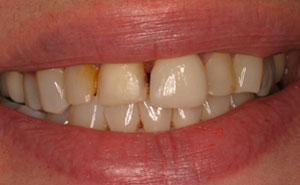 Closeup of damaged discolored smile before makeover