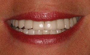 White teeth after makeover
