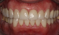 Closeup man's teeth and gums after full mouth reconstruction