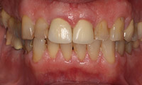 Closeup man's teeth and gums before full mouth reconstruction