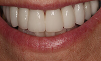 Closeup of front of smile of full makeover patient after
