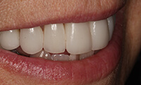 Closeup of side of smile of full makeover patient after