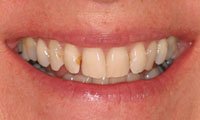 Before image of cracked, spaced and brown teeth