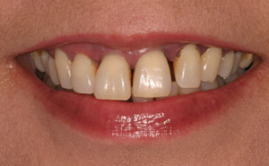 Dicolored and decayed teeth before makeover