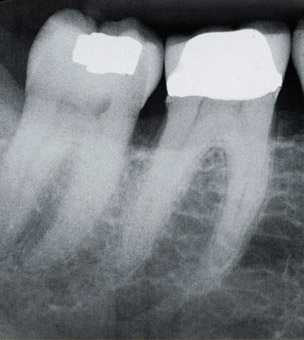 X-ray of teeth with fillings