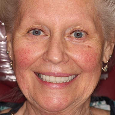 Senior woman with gorgeous smile after a cosmetic dentistry smile makepover