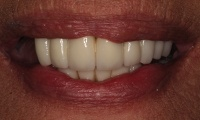 Closeup of bad dentures