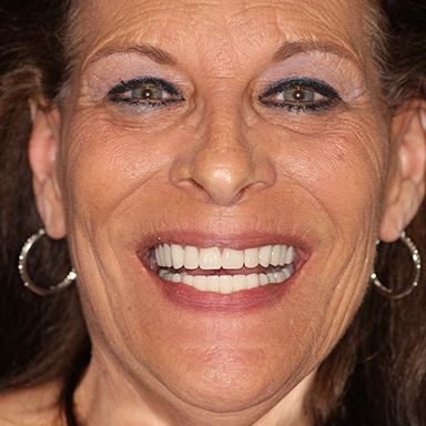 A geriatric dental patient smiling with high-quality cosmetic dentures