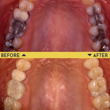 Before image of teeth with metal/amalgam fillings with an after image of teeth below it with new tooth-colored fillings