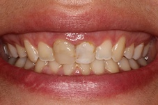 September 2020 gummy smile correction dental patient before treatment closeup