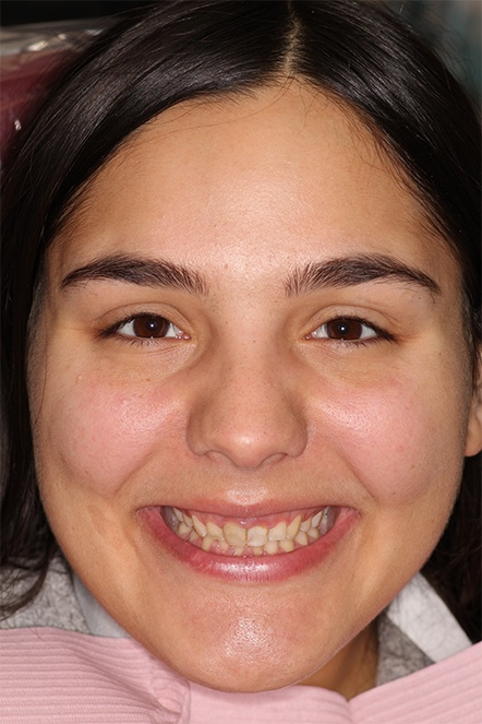 September 2020 gummy smile correction dental patient before treatment