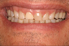 Before image of worn down teeth from clenching and grinding