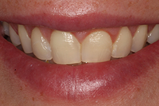 Woman's smile before treatment
