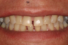 Woman's damaged smile before treatment