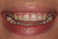 Gummy smile before gum recontouring
