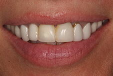 Patient's smile before treatment