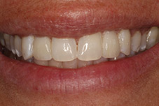 September 2016 patient with repaired top teeth closeup