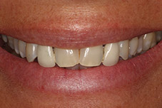 Closeup woman's damaged smile before treatment