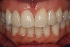 September 2016 patient with repaired teeth closeup after