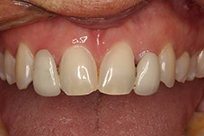 September 2016 patient with damaged teeth closeup before