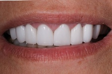 September 2020 gummy smile correction dental  patient after treatment closeup