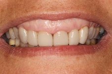 Gummy smile before gum recontouring on Long Island