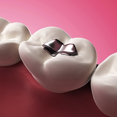 Animation of tooth with silver filling