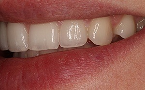 veneers patient after treatment