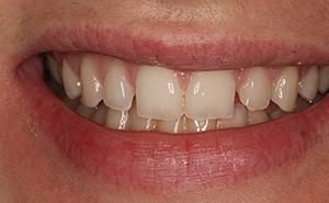 veneers patient before treatment