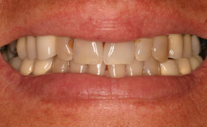 Discolored teeth closeup